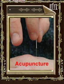 The amazing power of Acupuncture